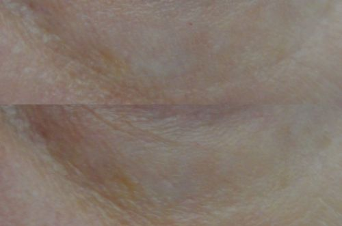 09 - Purederm Anti-wrinkle Gel Patches - before and after