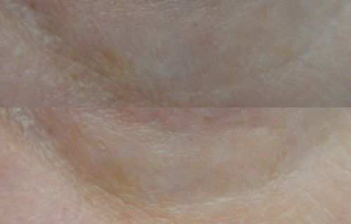 11 - Purederm Eye Puffiness Minimizing Patches GINKGO - before and after